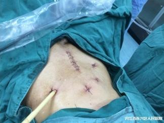 普外微创再开先河 —我院成功实施首例全腹腔镜下直肠肿瘤超低位保肛术